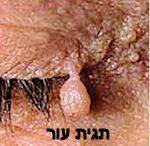 הסרת גידולי עור