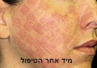 טיפול פנים מייד אחרי