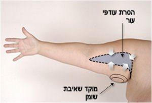 הסרת עודפי עור