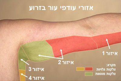 עודפי עור בזרוע