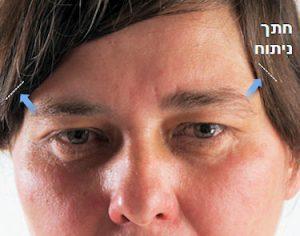 ניתוח פנים לגבר