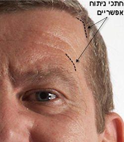 ניתוחי פנים לגברים