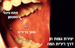 יצירת גומת חן דרך רירית הפה