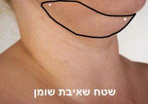 מתיחת צוואר