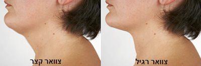 תמונות צוואר רגיל - צוואר קצר