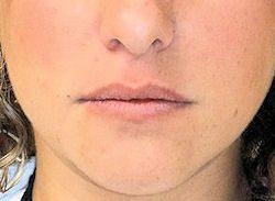 מילוי שפתיים