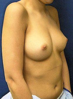 הגדלת חזה מעל השריר