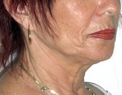 מתיחת פנים וצוואר