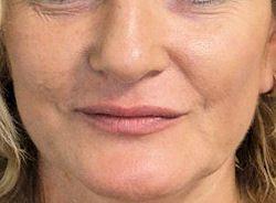 חידוש עור הפנים