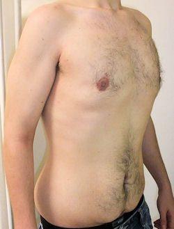 ניתוח גינקומסטיה