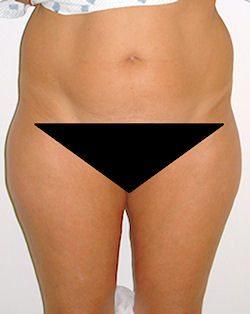 ניתוח שאיבת שומן