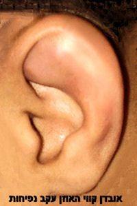 earswelling1