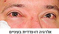 eyeallergy1