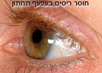 eyelashesloss
