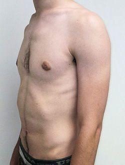 טיפול גניקומסטיה לגבר