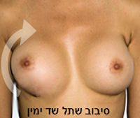 implantrotation