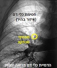 pulmonaryem
