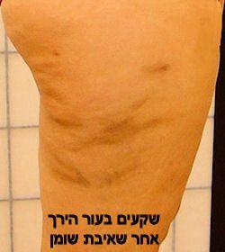 skinsurfaceirregularities