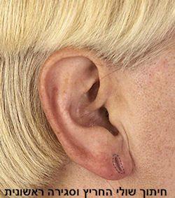 תיקון תנוך אוזן